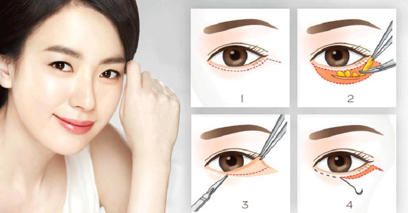 Vì sao nên tìm đến bác sĩ cắt mí mắt đẹp để thực hiện?