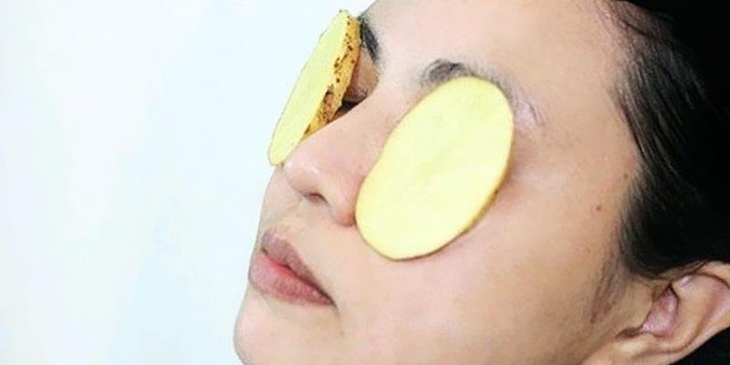 Cách làm hết bọng mắt dưới bằng khoai tây
